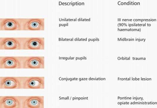 Pupil sizes