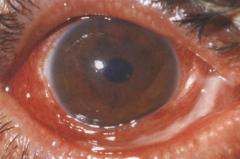 Epidemic keratoconjunctivitis