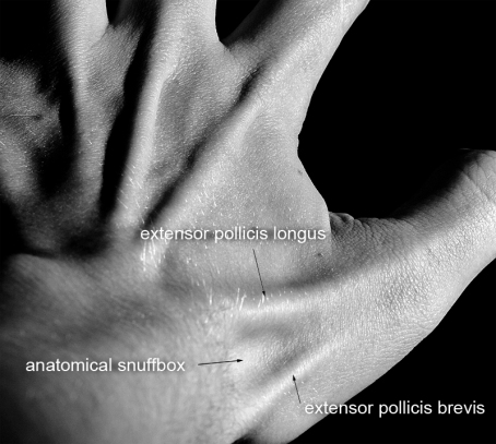Surface anatomy - Scaphoid